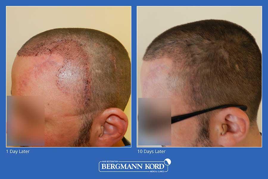 haarimplantation-bergmann-kord-ergebnisse-männer-45100PG-vorher-nachher-003