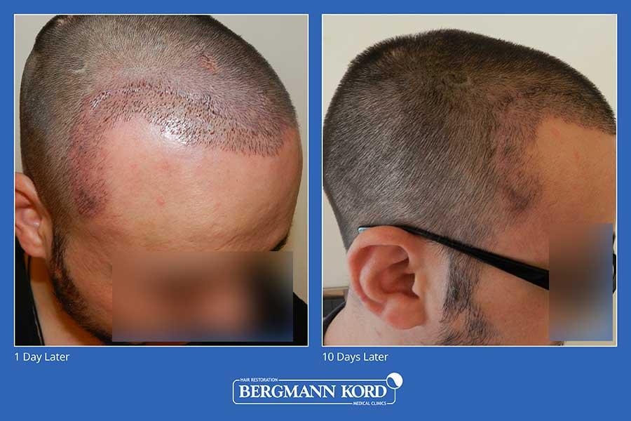 haarimplantation-bergmann-kord-ergebnisse-männer-45100PG-vorher-nachher-004