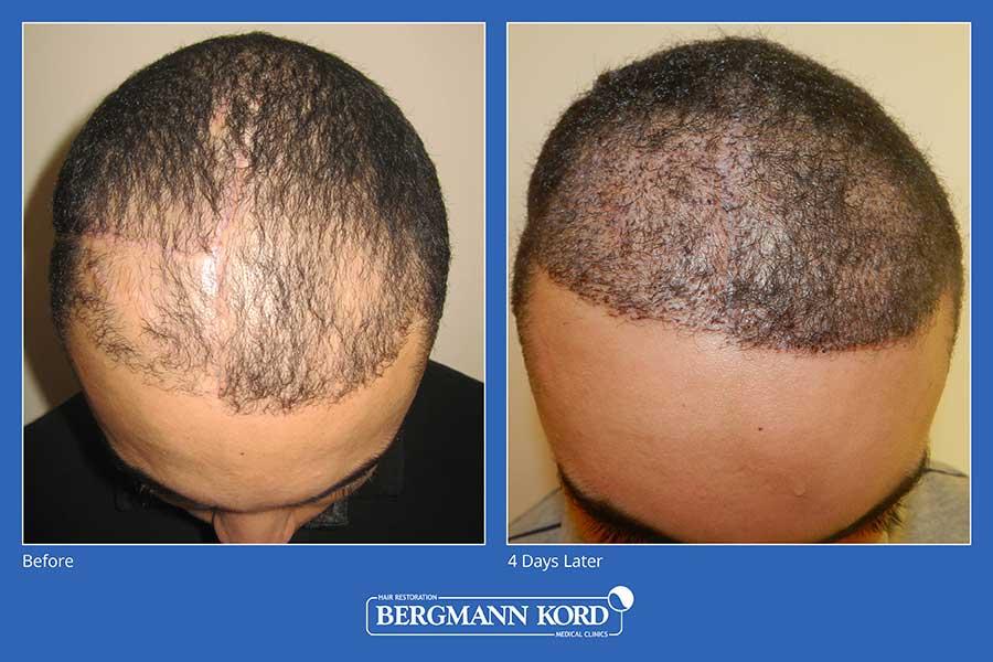 haarimplantation-bergmann-kord-ergebnisse-männer-45101PG-vorher-nachher-002