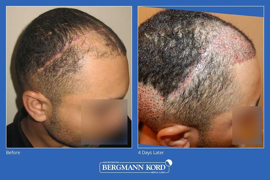 haarimplantation-bergmann-kord-ergebnisse-männer-45101PG-vorher-nachher-004