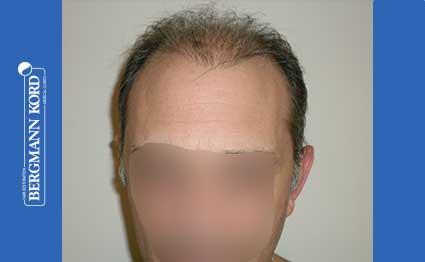 haartransplantation-bergmann-kord-ergebnisse-FUT-58054TL-vor-001