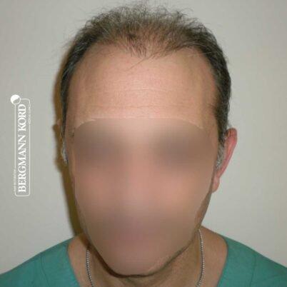 haartransplantation-bergmann-kord-ergebnisse-FUT-58054TL-vor-front-001