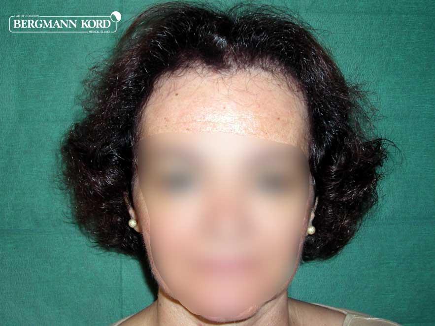 haartransplantation-bergmann-kord-ergebnisse-frau-49038PG-nach-front-001
