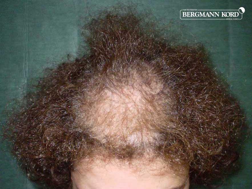 haartransplantation-bergmann-kord-ergebnisse-frau-63032PG-vor-oben-001