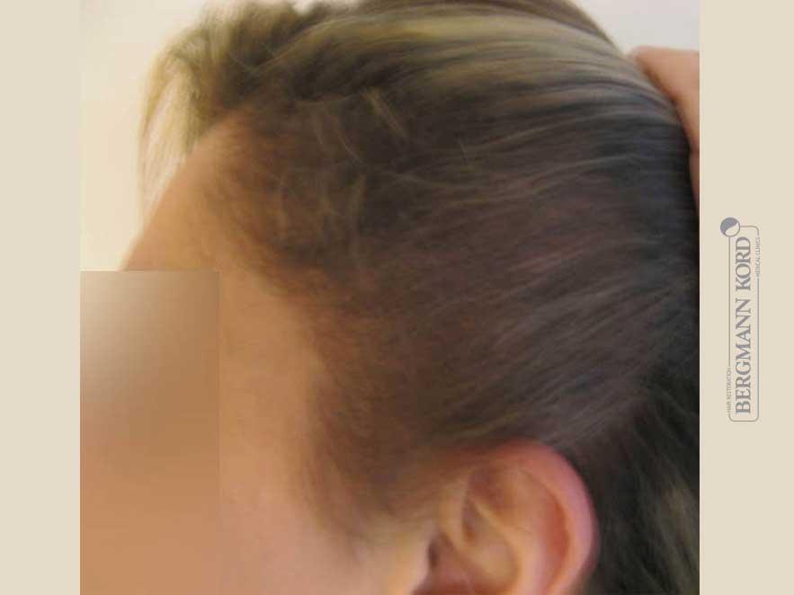 haartransplantation-bergmann-kord-ergebnisse-frau-64026PG-nach-links-001