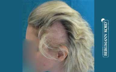 haartransplantation-bergmann-kord-ergebnisse-frau-64026PG-thumb-001