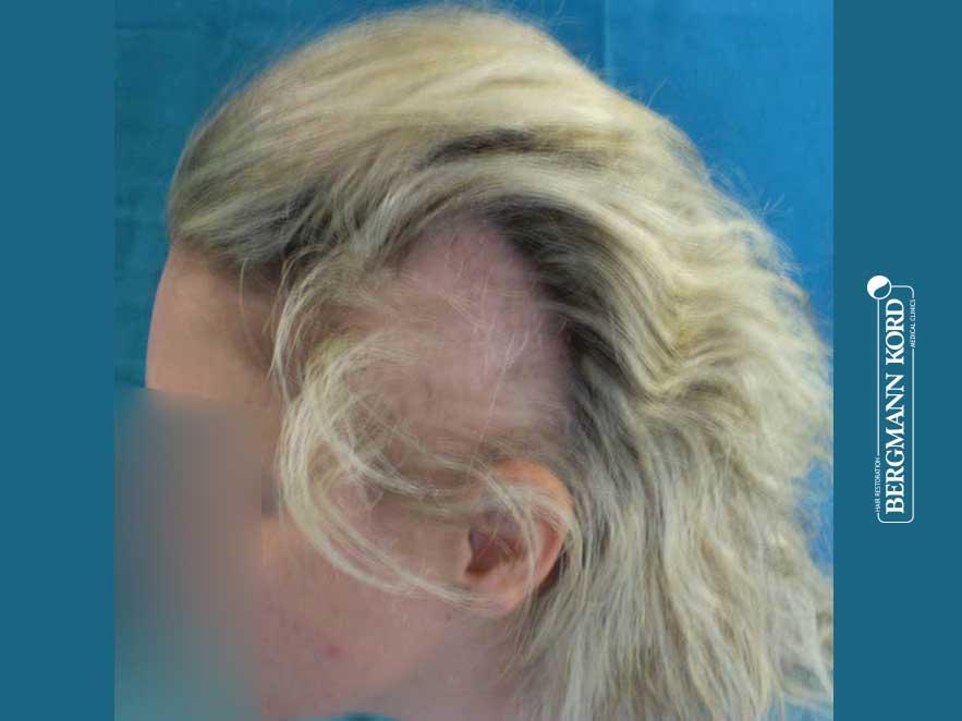 haartransplantation-bergmann-kord-ergebnisse-frau-64026PG-vor-links-001