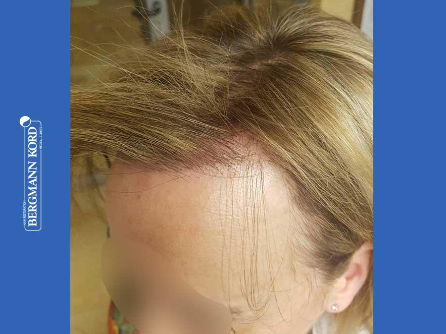 haartransplantation-bergmann-kord-ergebnisse-frau-66050PG-nach-links2--001