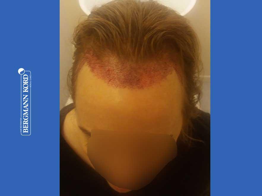 haartransplantation-bergmann-kord-ergebnisse-frau-66050PG-vor-oben-001