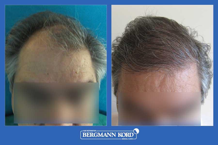 haartransplantation-bergmann-kord-ergebnisse-männer-20089PG-vorher-nachher-001