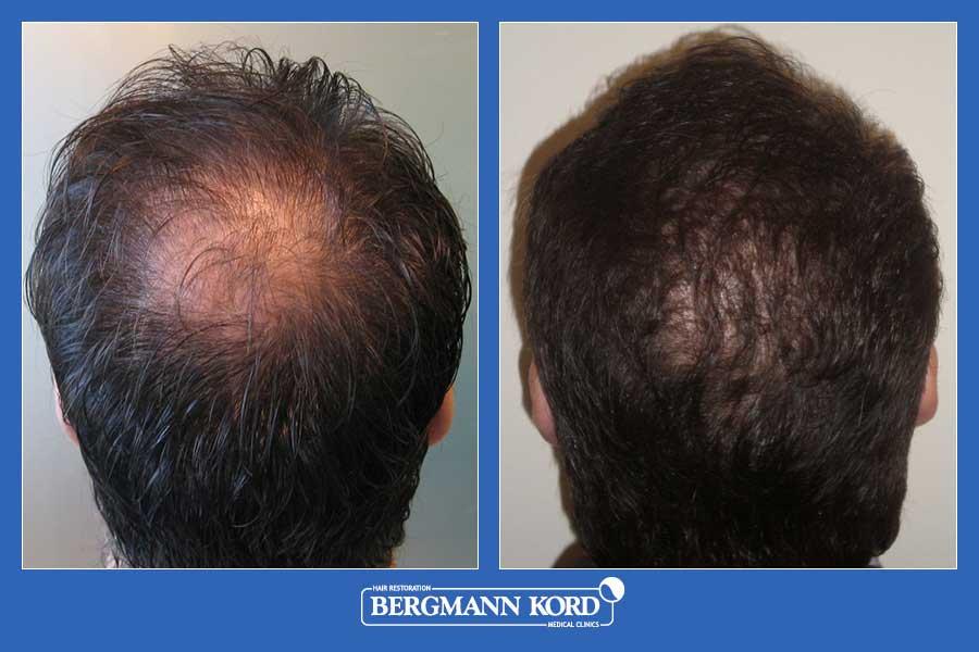 haartransplantation-bergmann-kord-ergebnisse-männer-31103PG-vorher-nachher-001