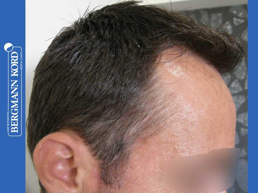 haartransplantation-bergmann-kord-ergebnisse-männer-41035PG-nach-recht-001