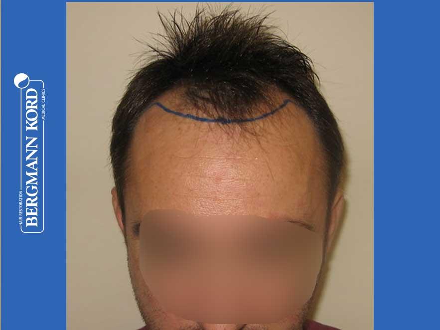 haartransplantation-bergmann-kord-ergebnisse-männer-41035PG-vor-front-001