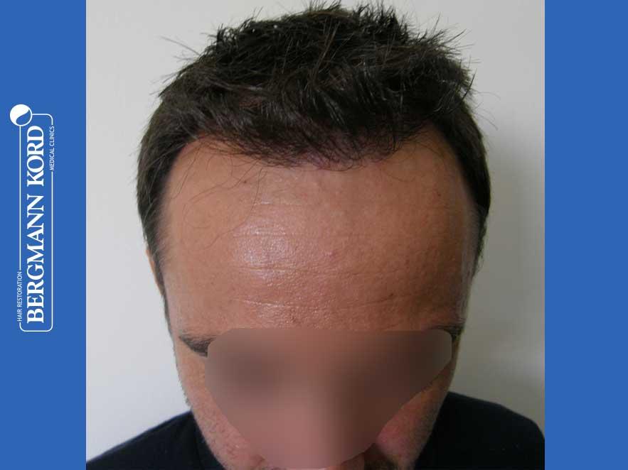 haartransplantation-bergmann-kord-ergebnisse-männer-41035PG-vorhanden-front-001