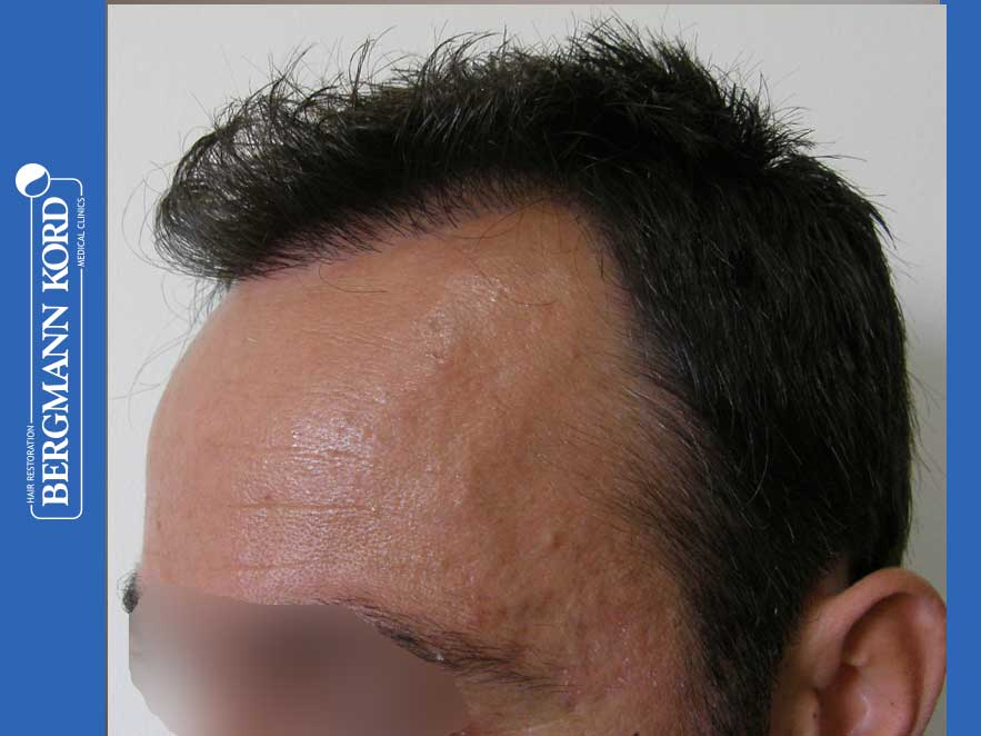 haartransplantation-bergmann-kord-ergebnisse-männer-41035PG-vorhanden-links-001