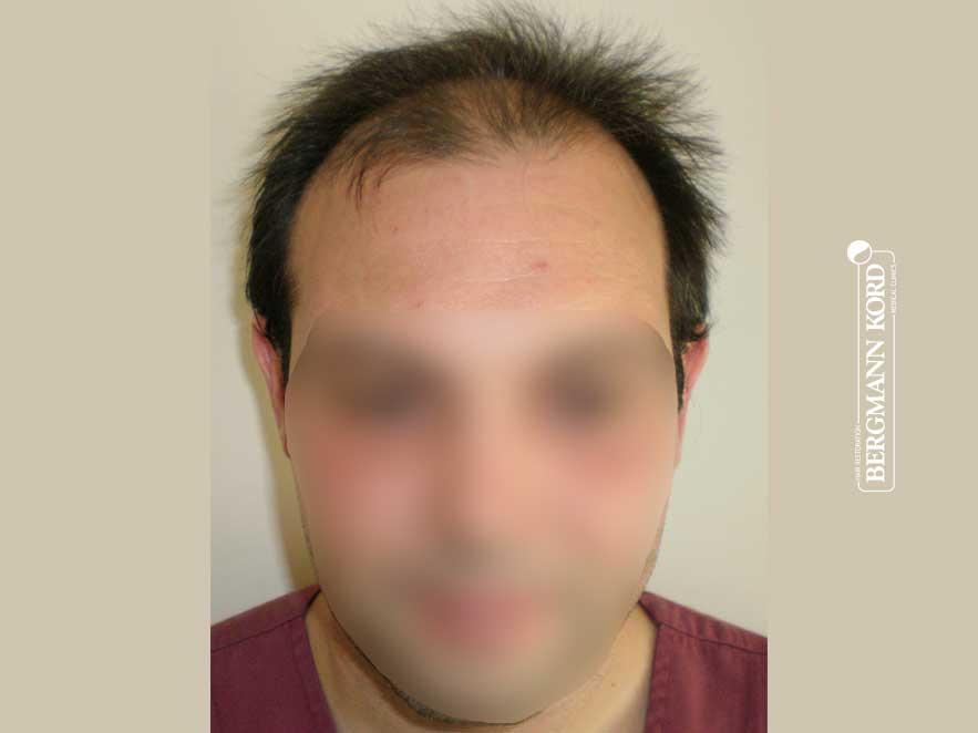 haartransplantation-bergmann-kord-ergebnisse-männer-41042PG-vor-operation-front-001