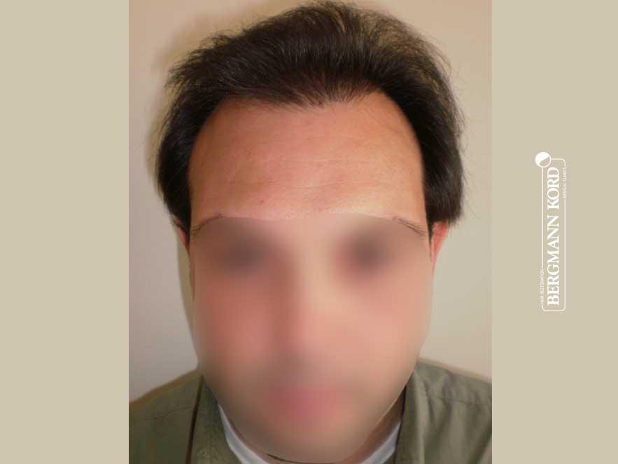 haartransplantation-bergmann-kord-ergebnisse-männer-41042PG-vorhanden-front-001