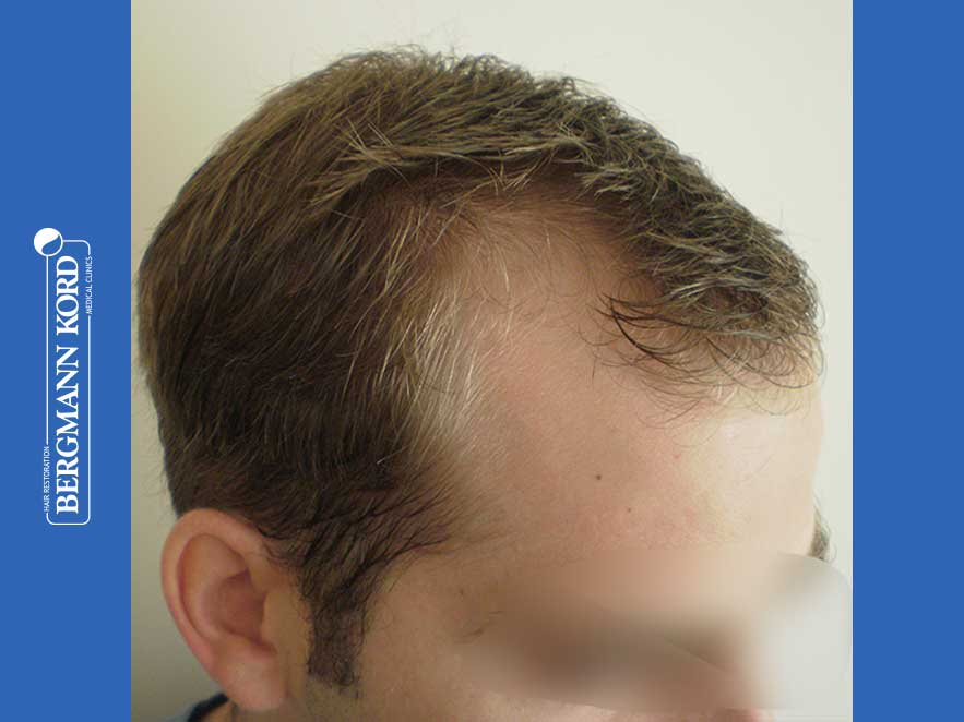 haartransplantation-bergmann-kord-ergebnisse-männer-43014PG-vor-recht-001