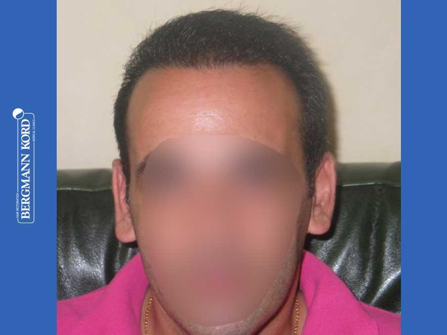 haartransplantation-bergmann-kord-ergebnisse-männer-44039PG-nach-front-001