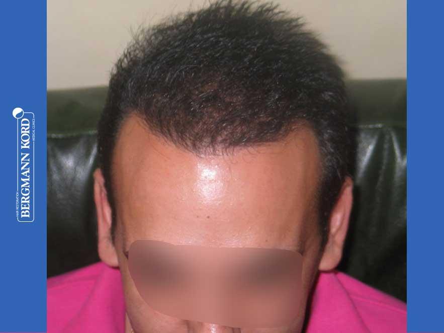 haartransplantation-bergmann-kord-ergebnisse-männer-44039PG-nach-ober-001