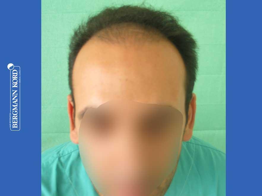 haartransplantation-bergmann-kord-ergebnisse-männer-44039PG-vor-front-001