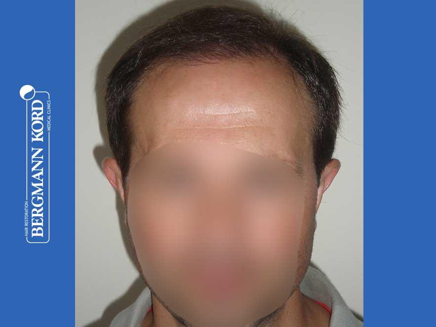 haartransplantation-bergmann-kord-ergebnisse-männer-44056PG-nach-front-001