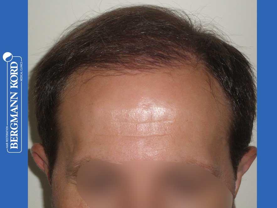haartransplantation-bergmann-kord-ergebnisse-männer-44056PG-nach-ober-001