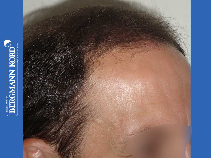 haartransplantation-bergmann-kord-ergebnisse-männer-44056PG-nach-recht-001