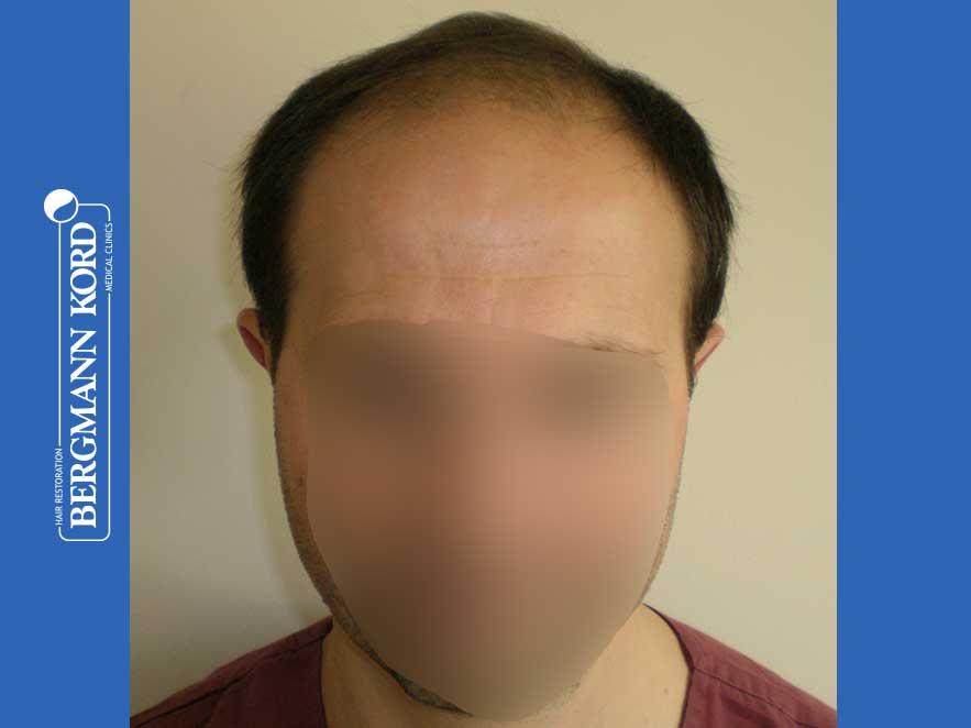 haartransplantation-bergmann-kord-ergebnisse-männer-44056PG-vor-front-001