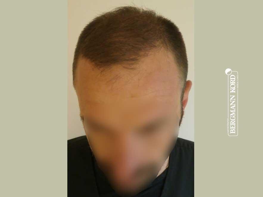 haartransplantation-bergmann-kord-ergebnisse-männer-45023PG-nach-front-001
