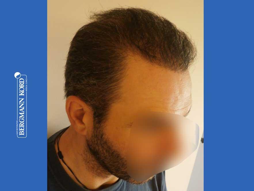haartransplantation-bergmann-kord-ergebnisse-männer-48009PG-nach-recht-001