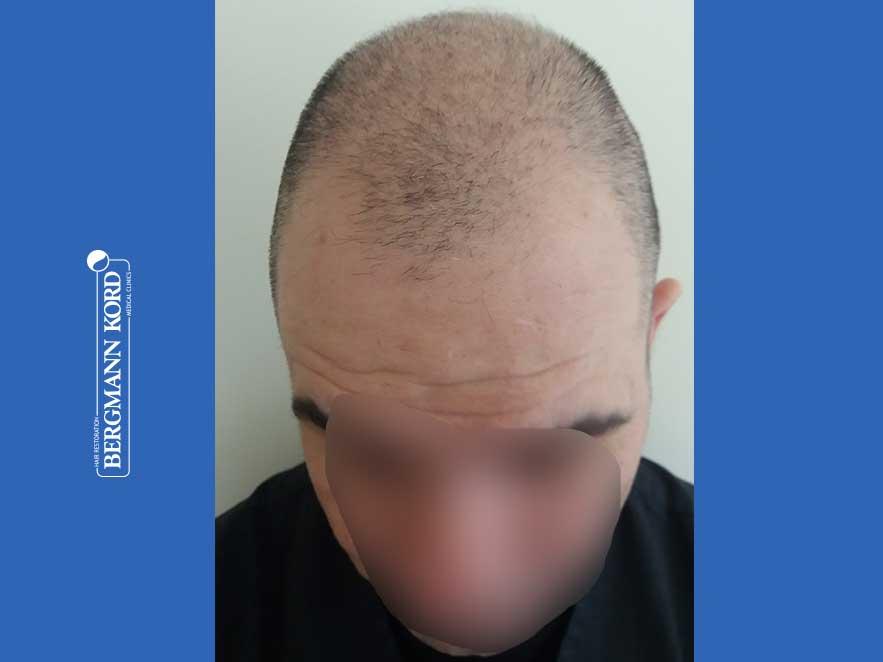 haartransplantation-bergmann-kord-ergebnisse-männer-48009PG-vor-front-001