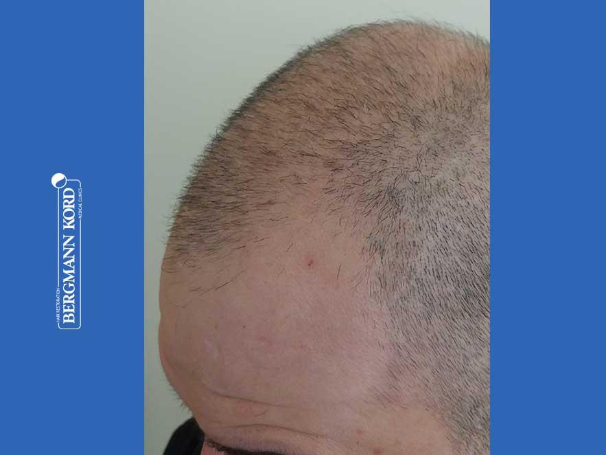 haartransplantation-bergmann-kord-ergebnisse-männer-48009PG-vor-links-001