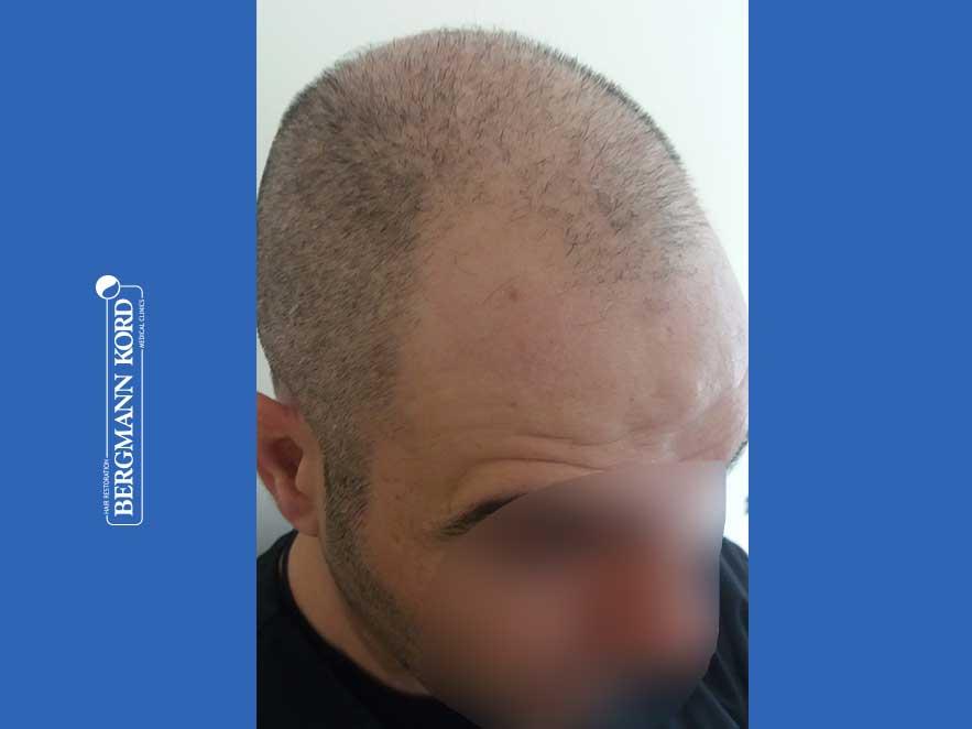 haartransplantation-bergmann-kord-ergebnisse-männer-48009PG-vor-recht-001