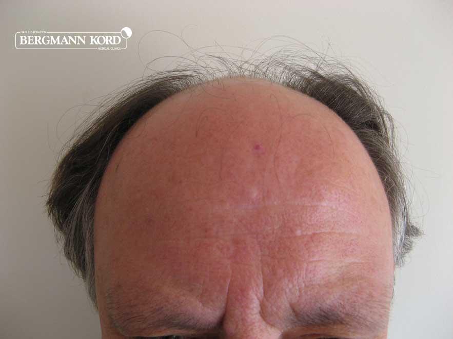 haartransplantation-bergmann-kord-ergebnisse-männer-49021PG-vor-001