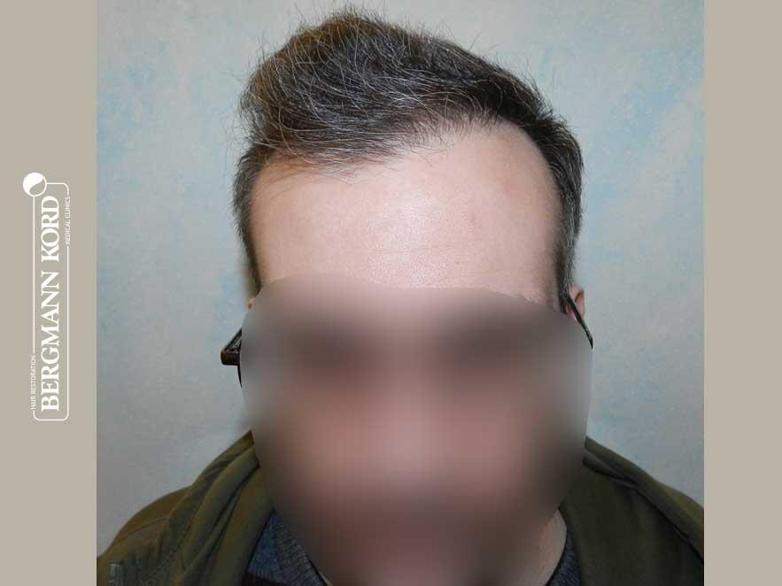 haartransplantation-bergmann-kord-ergebnisse-männer-49048PG-nach-front-001