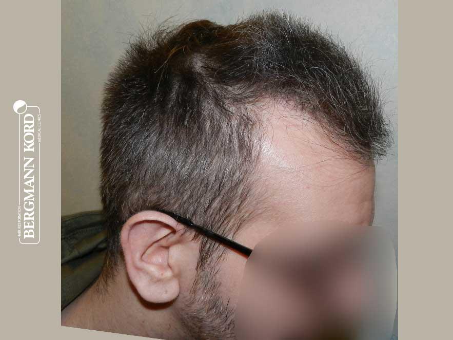 haartransplantation-bergmann-kord-ergebnisse-männer-49048PG-nach-recht-001