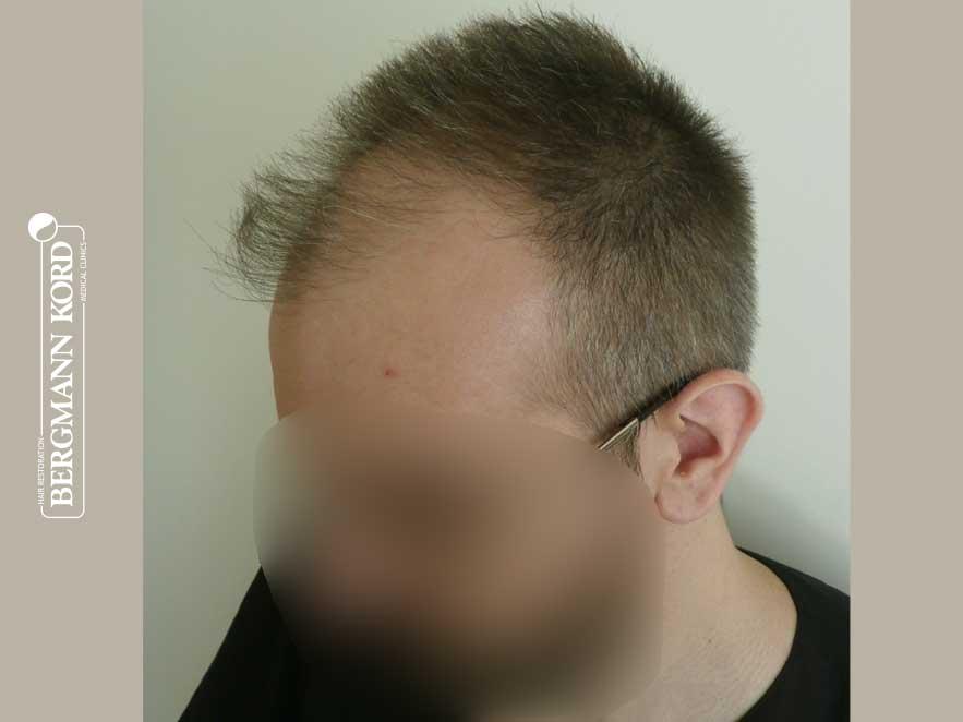 haartransplantation-bergmann-kord-ergebnisse-männer-49048PG-vor-links-001