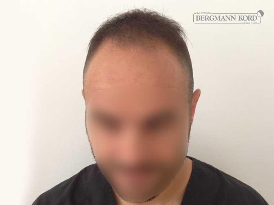 haartransplantation-bergmann-kord-ergebnisse-männer-51003PG-vor-front-001
