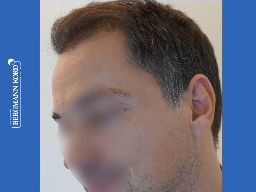 haartransplantation-bergmann-kord-ergebnisse-männer-52016PG-nach-links-001