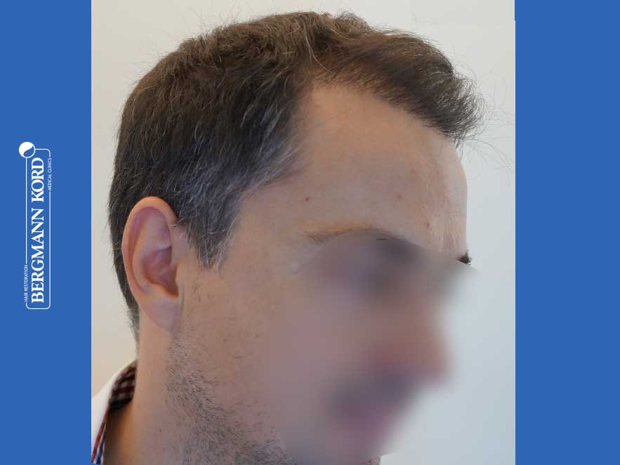 haartransplantation-bergmann-kord-ergebnisse-männer-52016PG-nach-recht-001