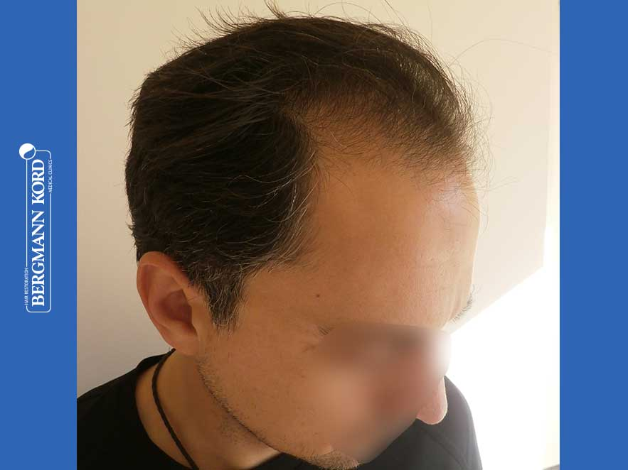 haartransplantation-bergmann-kord-ergebnisse-männer-52016PG-vor-recht-001