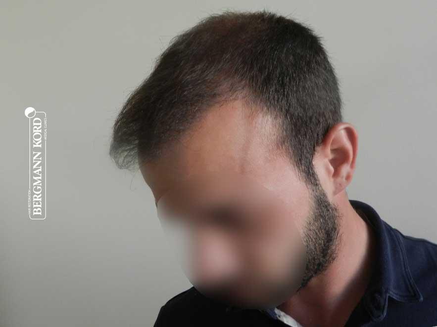 haartransplantation-bergmann-kord-ergebnisse-männer-55008PG-nach-links-001