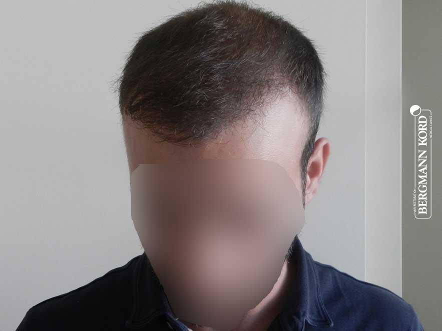 haartransplantation-bergmann-kord-ergebnisse-männer-55008PG-nach-ober-001