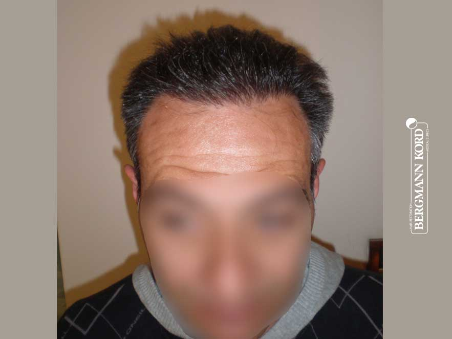 haartransplantation-bergmann-kord-ergebnisse-männer-56037PG-nach-front-001