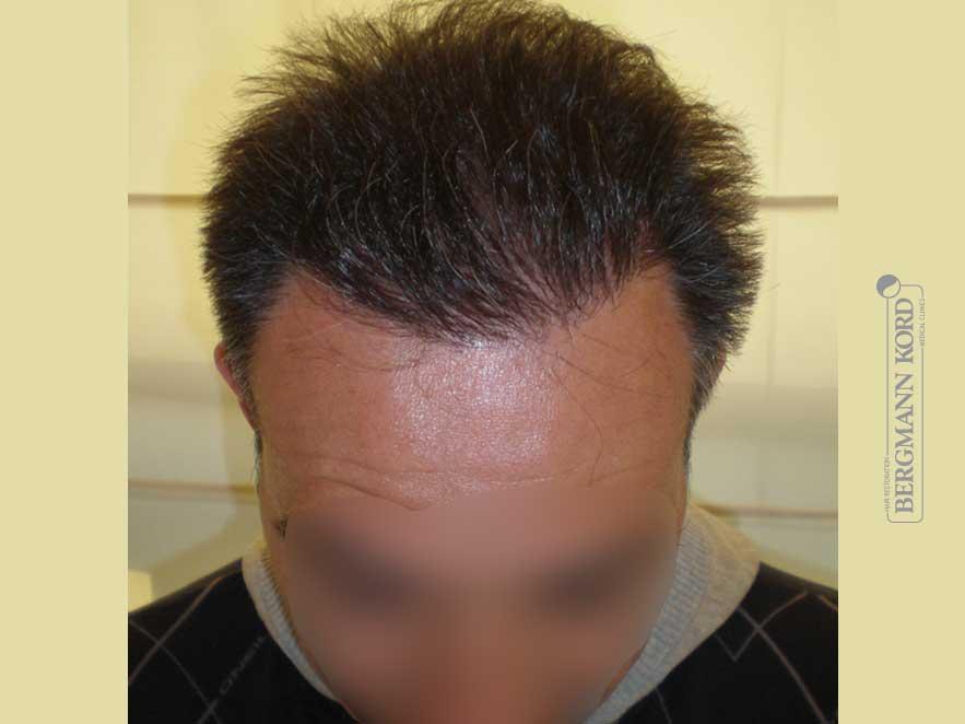 haartransplantation-bergmann-kord-ergebnisse-männer-56037PG-nach-ober-001