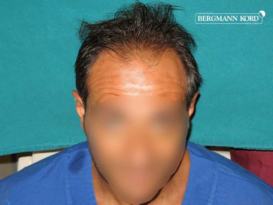 haartransplantation-bergmann-kord-ergebnisse-männer-56037PG-vor-front-001