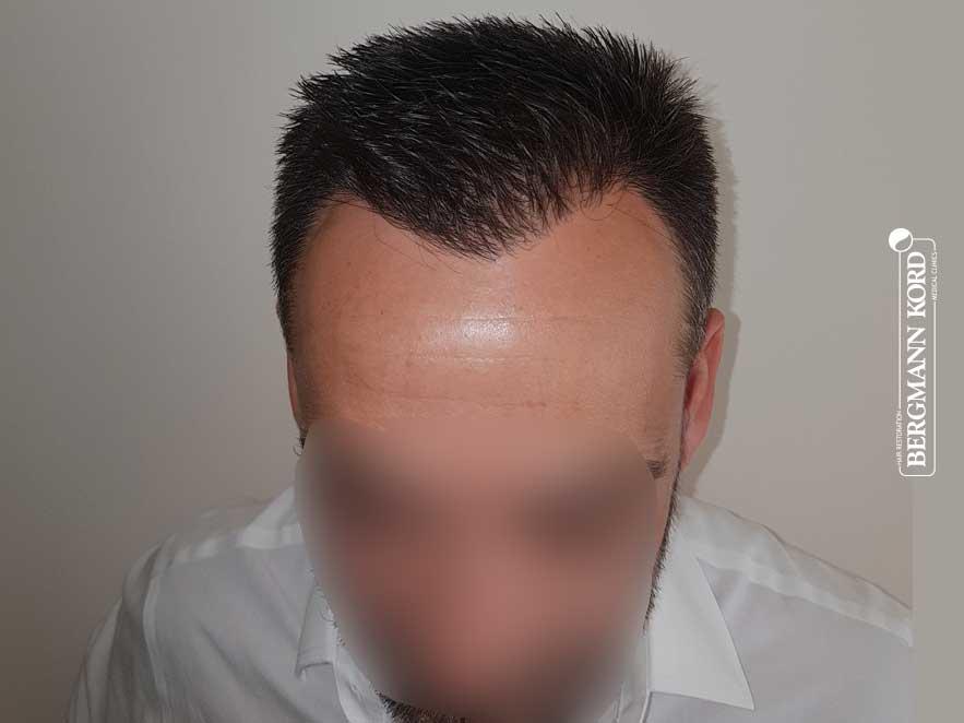 haartransplantation-bergmann-kord-ergebnisse-männer-56047PG-nach-front-001