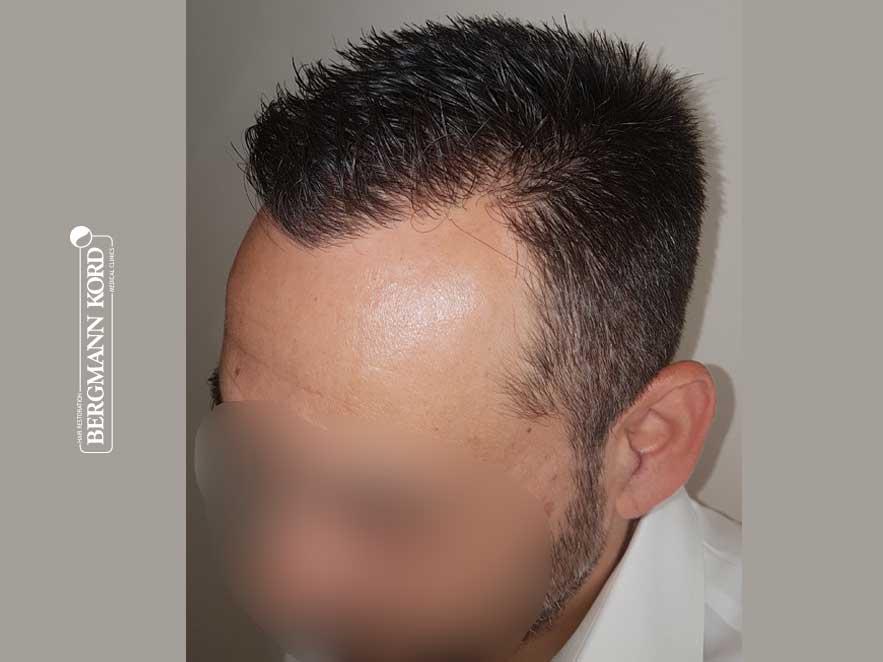 haartransplantation-bergmann-kord-ergebnisse-männer-56047PG-nach-links-001