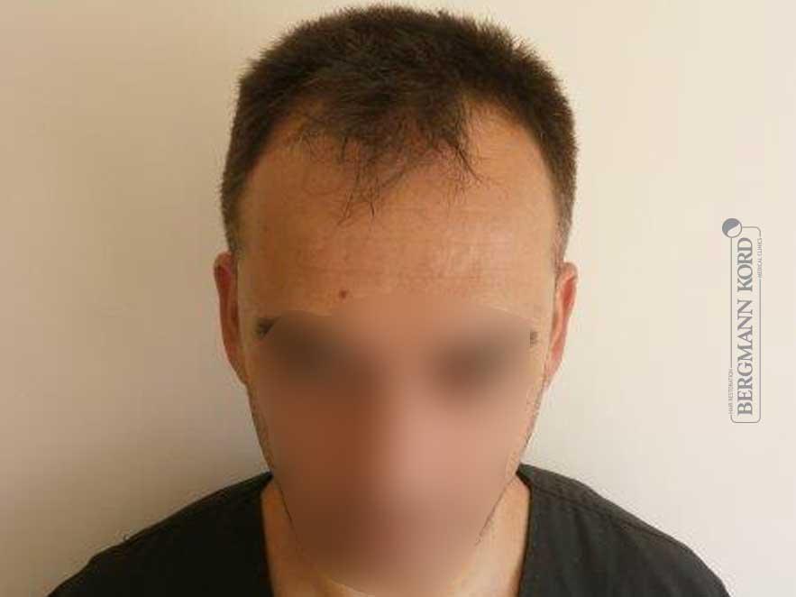 haartransplantation-bergmann-kord-ergebnisse-männer-56047PG-vor-front-001